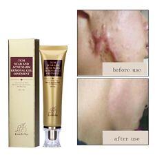 SCAR Acnes Stretch Marks, Acnes Scar Keloid Skin, Burns Removal Gel Cream 30g