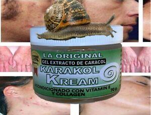 Karakol kream,dermaccina manchas,estrias,snail cream,crema de caracol,acne
