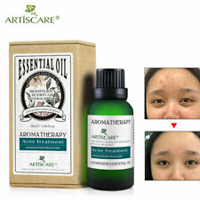 Acne Treatment Essential Oil Removal Scars Moisturizing Face Cream  Whitening