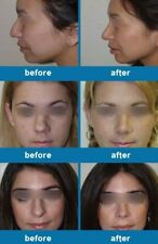 Nose Reshape Reshaping Sculpt Restructuring Rhinoplasy Slimmer Straighten Align