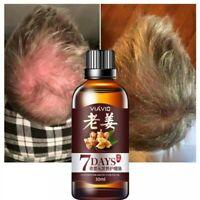 Unisex Ingwer Germinal glatte Nachwachsen Haarwachstum Serum Öl Anti Haarausfall