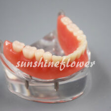 Dental Acrylic Teeth Model Overdenture Inferior with 4 Implants Demo #6002-02