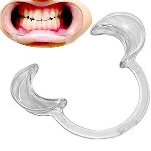 Cheek Retractors Teeth Whitening Lip Mouth Opener Holder Retractor Oral Dental
