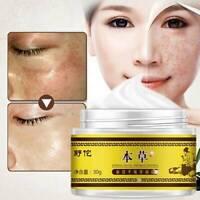 Facial Skin Care Freckle Removal Dark Spot Lightening Beauty Cream Anti-winkle