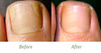 NEW Fungal treatment lotion kills 99.9% skin & nail fungus & toes Evterpa , 50ml