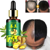 Men 30ml 7 Days Hair Growth Care Ginger liquid Oil for Dry Damaged Hairs Top