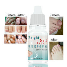 New 10ml Tinea Unguium Nail Treatment For Toe and Finger Nails Fungal Infections