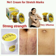 Best Cream for Stretch Marks remover strong Strength Removes Stretch Marks UK
