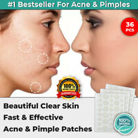 36PCS DERMOPATCHY ACNE SKIN TAGS PIMPLE BLEMISH REMOVER PATCH REMOVAL CARE SPOT