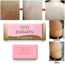 5pcs Sulfur Soap oil-control Acne Treatment Blackhead Remover Cleanser Skin Care