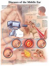 A3 Medical Poster – Maladies de l'oreille moyenne (Texte Livre Anatomie Pathologie)