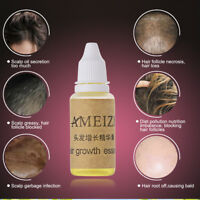 20ml AMEIZII Hair Growth Essence Dense Hair Fast Liquid Hair Loss Treatments New