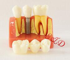 1Pcs FDA Dental Implant Model For Doctor-patient Communication Use Random Color
