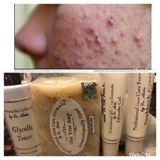 Dr. Alvin PSCF Severe Anti-Acne Pimples Set With Tea Tree Soap Extra Toner