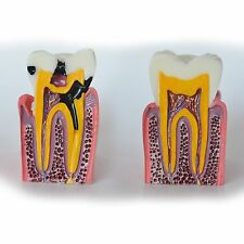 Dental Model  #4013 03 - Caries Cross-section Vertical View Model