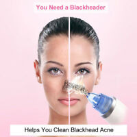 Face Clean Diamond Blackhead Vacuum Suction Removal Beauty Machine Skin Care