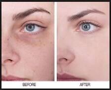 Skin lightening whitening Face Body cream brown pigmentary patches sun damage -3