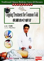 Traditional Chinese Medicine - Cupping Treatment for Common Cold DVD