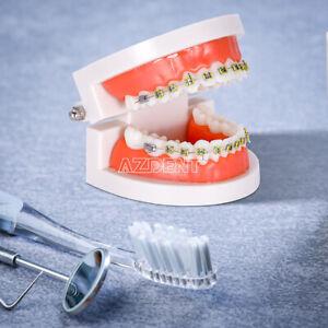 Dental Orthodontic Teeth Bracket Model PVC + Metal Teaching Equipment Teeth