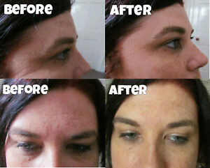 Miracle One 1 minute wrinkle remover eye bag dark circle face cream serum filler