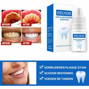 Eelhoe Teeth Whitening Powder Clean Oral Hygiene Remove Plaque Stains Fresh New