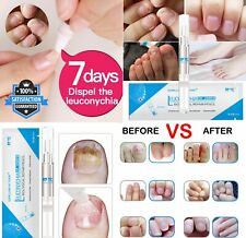 Nail Treatment anti Fungus Nail Oil Pen Cuticle Remover Growth Skin Care , 3ML