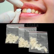 150Pcs Dental A2 Resin Ultra-Thin Whitening Veneers Teeth Upper+Lower Anterior