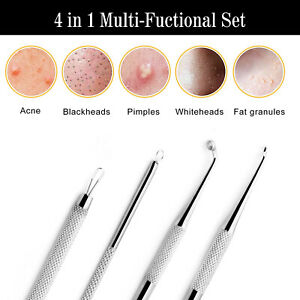 Professional Blackheads Whiteheads Remover Extractor Acne Comedone Skin Tool Kit
