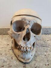 TAXIDERMIE,CURIOSITÉS, CABINET DE curiosité, vrai ancien crâne de médecine