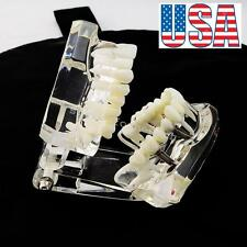 USA 1pc Dental Implant Disease Teeth Model with Restoration & Bridge Tooth Study