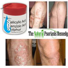 WHITFIELDS OINTMENT Salicylic & Benzoic Acid & Sulfur CLEARS PSORIASIS ECZEMA
