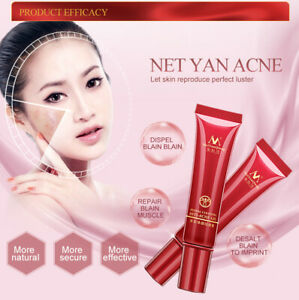 Effective Acne Removal Cream Herbal Moisturizing Face Gel Skin Care 15g