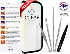 BLEMISH KIT STEEL BLACKHEAD ACNE COMEDONE PIMPLE PORE EXTRACTOR REMOVER TOOL SET