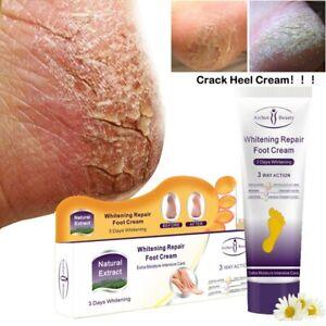 Ichun Crack Heel Cream Repair Anti Crack Whitening Cream Foot Peeling Cracked