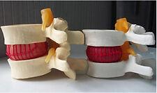 2*pcs Human Lumbar Vertebrae Lumbar Disc Erniation Demonstration Model US Stock