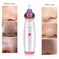 Face Cleaner Electric Blackhead Remover Pore Vacuum Suction Dermabrasion Tool E