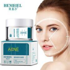 Anti Acne Scar Removal Pimple Blackhead Moisturizing  Whiten Oil-control Shrink