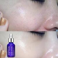 Collagen Essence Retinol Serum Creme Hyaluronsäure Anti Aging Hautpflege