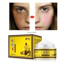Skin Lightening Whitening Cream Spot Freckle Fade Removal Cream for Face C1MY