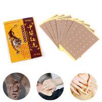 8Pcs China Tiger Anti-inflammatory Analgesic Paste Patch Pain Release Massage FO