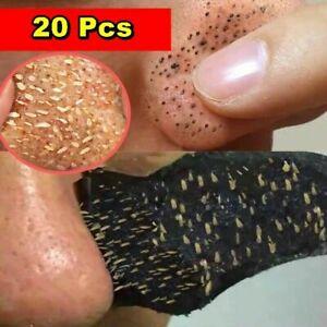 20pcs Bamboo Charcoal Blackhead Remover Mask Black Dots Treatment Mask Sticker