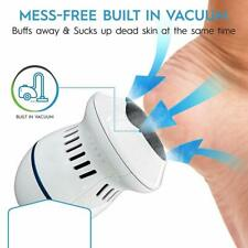 Portable Electric Callus Remover Foot Exfoiliator File Pedicure for Cracked Heel