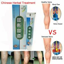 Medical Varicose Veins Treatment Leg Acid Bilges Itching Lumps Vasculitis Cream-