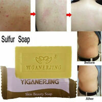 Women Skin Care Sulfur Soap Acne Anti Fungus Home Bathroom Bath Shampoo Soap