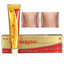 Chinese Herbal Cream for Eczema Skin Rash Psoriasis, Hong Kong foot, Vitiligo