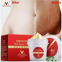 Women Smooth Skin Cream Scar Removal Maternity Skin Repair Body Stretch Marks US