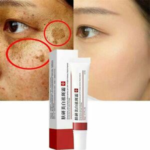 Whitening Freckle Skin Deep-Remove Melasma Acne Spot Pigment Melanin Spots Cream