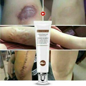 Crema Para Eliminar Cicatrices Estrias Quemaduras y Acne Corrige la Pigmentacion