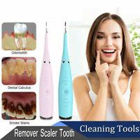 Nettoyant électrique pour dents Irrigateur oral à ultrasons Nettoyage dentaire