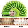 FDA 28pc Harmony Life Teeth Whitening Strips bleaching whitestrips 2 week supply